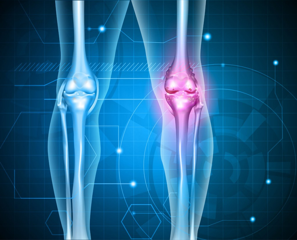 39409566 - knee pain abstract background. healthy joint and unhealthy painful joint with osteoarthritis.